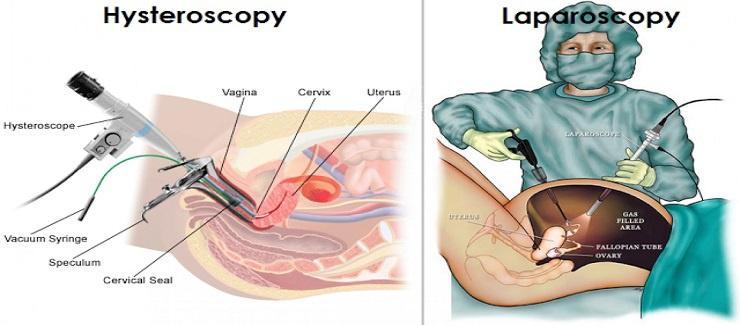 Endoscopy- Diagnostic & Operative Hysteroscopic & Laparoscopic Surgeries